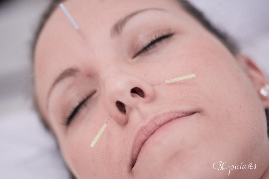 besser schlafen mit Akupunktur - Ordination Dr. Url