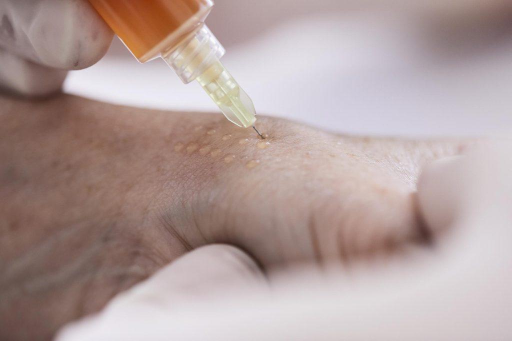 Mesotherapie - Ordination Dr. Url