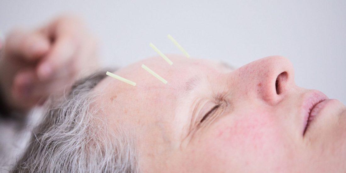 Stess Akupunktur