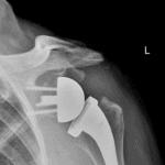 Röntgenaufnahme Schultergelenk Prothese