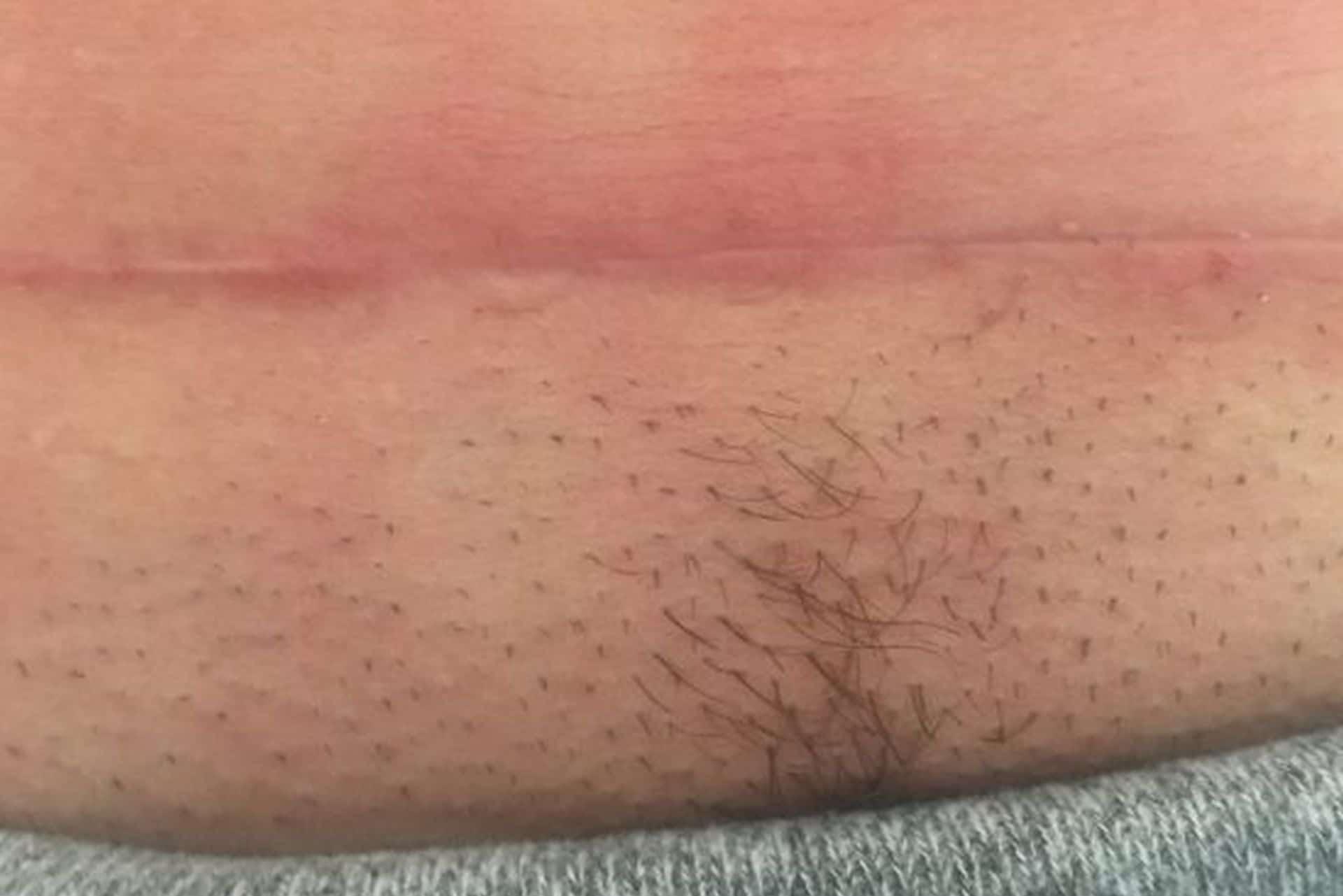 Kaiserschnittnarbe - Ordniation Dr. Url